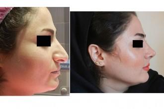 beauty nose surgery