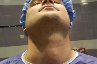Tumor surgery