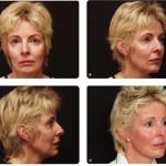 مقاله پیری و مختصات زیبایی قسمت دوم