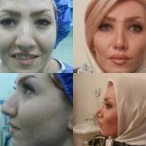 گالری تعدادی ازاعمال جراحی زیبایی بینی تابستان ۱۳۹۴