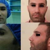 گالری تعدادی ازاعمال جراحی زیبایی بینی ۱۳۹۳