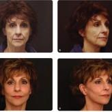مقاله پیری و مختصات زیبایی قسمت اول